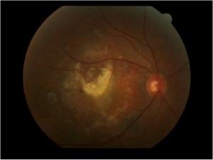 Cicatriz fibrosa en la retina central